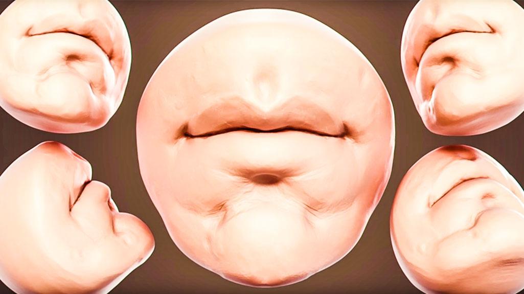 Disartria: Causas y síntomas | Dificultad para articular sonidos y palabras
